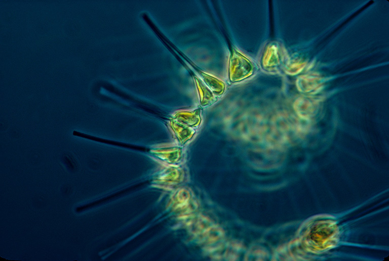 Micrograph of phytoplankton. Image by NOAA MESA Project, via the NOAA Photo Library.